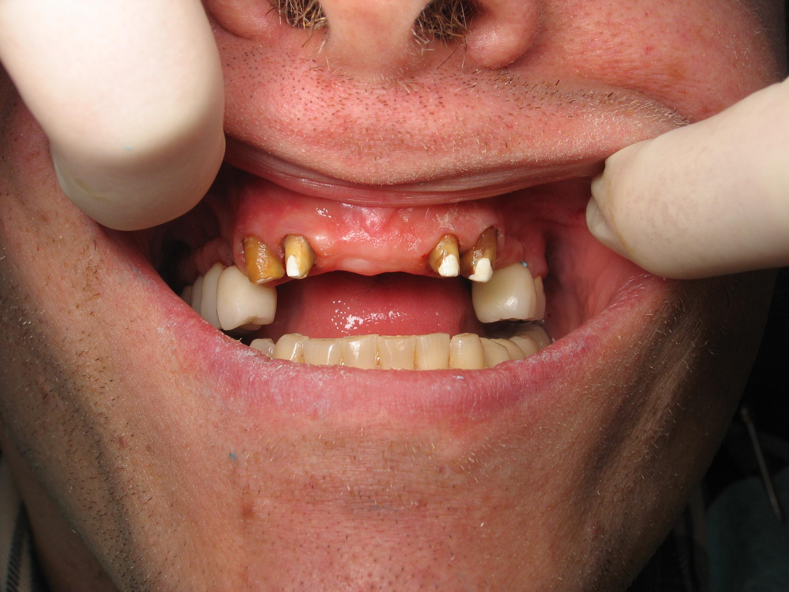 Stunning Dental Bridge Front Teeth 2592 x 1944 · 1160 kB · jpeg