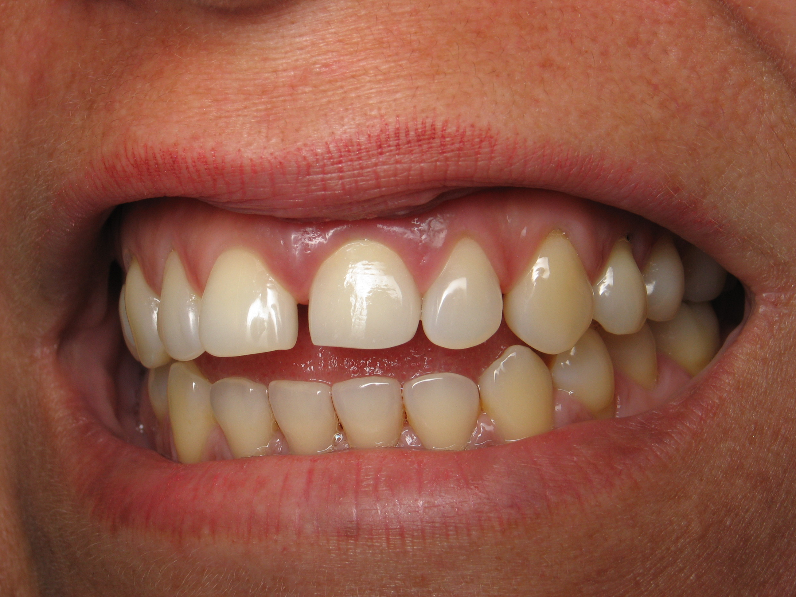 Dental Implants – How long does it take