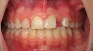 After initial ortho (3)