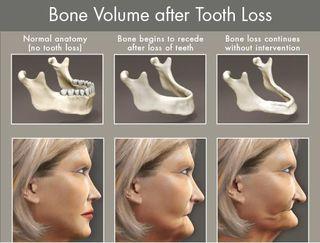 Bone volume for samples