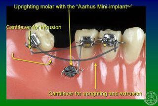 Ortho implant