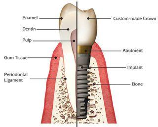 Implant_anatomy basic pic