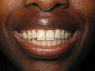 front tooth dental implant --Dr. Ramsey Amin -Burbank