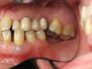 collapsed bite - need for dental implants