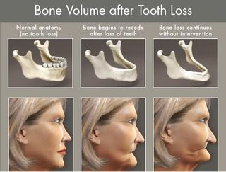 Bone loss -need for dental implants