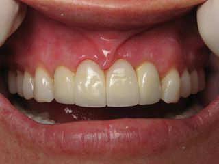 ovate pontic burbank dental implants