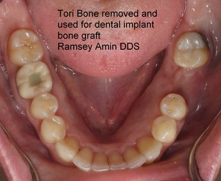 Mandibular Tori Used As Bone Graft Source For Dental Implants