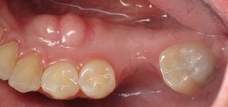 Hard Bump on Gums http://www.burbankdentalimplants.com/mandibular-tori-used-as-bone-graft-source-for-dental-implants/
