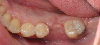 Burbank Dental bone graft (1)