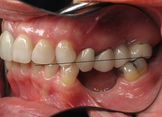 Burbank Dental Implants Correcting A Collapsing Bite