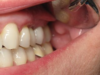 slanted tooth implant -Ramsey Amin DDS