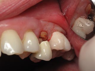 Broken Tooth to be replaced with dental implant --Ramsey Amin