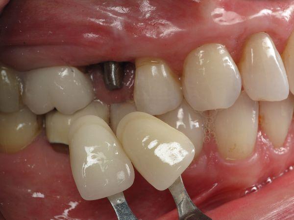 Broken Tooth - Slanted Dental Implant Crown Fixed - Dental ...