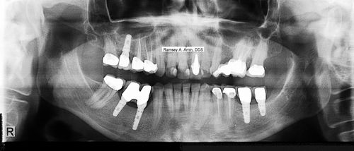 Porcelain crowns xray