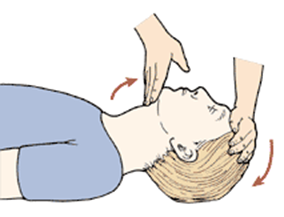 Asleep head postion for IV sedation