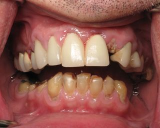 Before burbank dental implants (2)