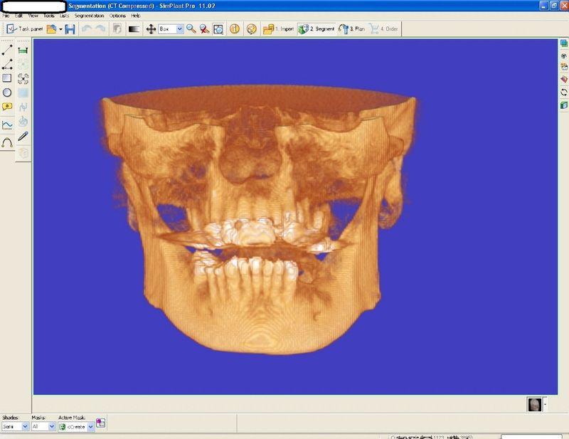Dental implant ramsey amin dds (5)