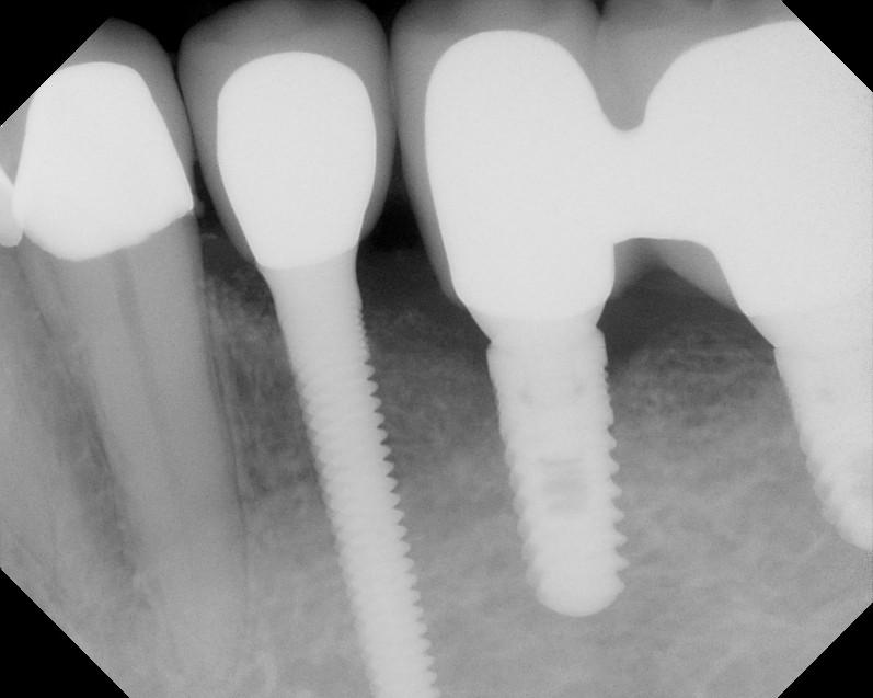 Dental implant ramsey amin dds (8)
