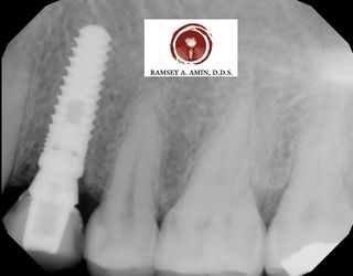 Immediate Burbank Dental implant