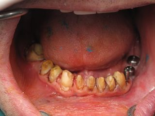 Before burbank dental implants (9)