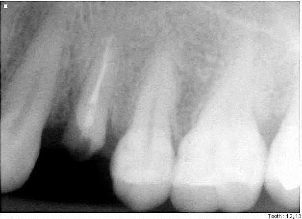 Ramsey Amin DDS DEntal implant