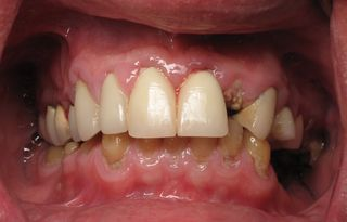 Before burbank dental implants (1)