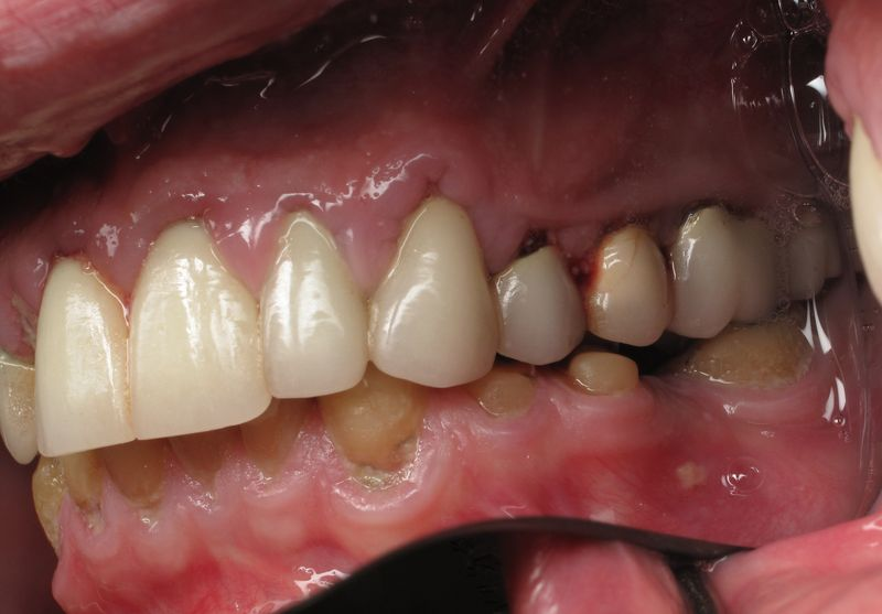 How much do dental implants cost (1)