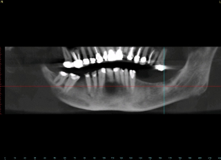 Dental implant ramsey amin dds (1)