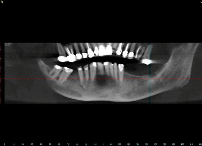 Dental implant ramsey amin dds (1)