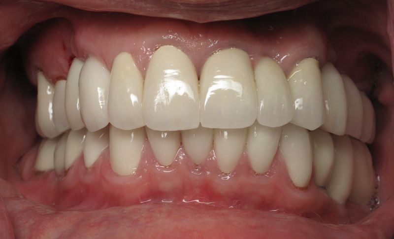 Best burbank dentist (1)