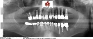 Dental implant ramsey amin dds (3)