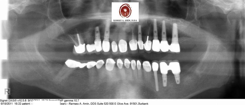 Dental implant ramsey amin dds (3)
